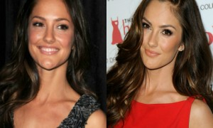 Minka Kelly plastic surgery before and after photos1