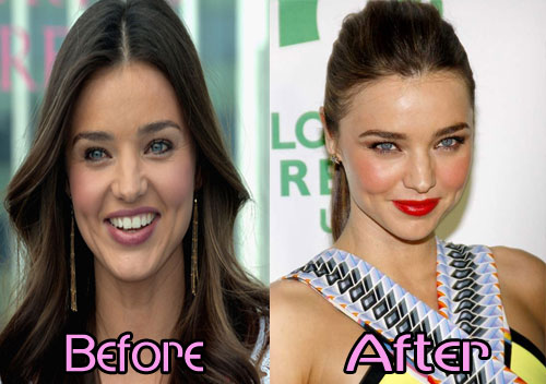 Miranda Kerr plastic surgery before and after photos 1