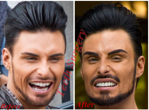 Rylan Clark New Teeth Before And After Photos