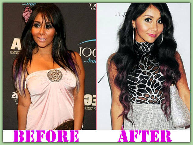 Snooki Nose Job before and after plastic surgery photos 1