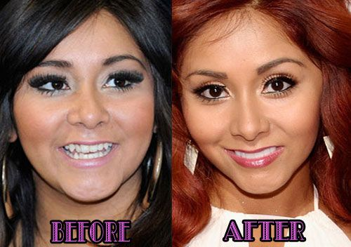 Snooki Nose Job before and after plastic surgery photos