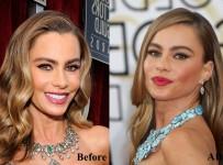 Sofia Vergara plastic surgery face before and after photos 4