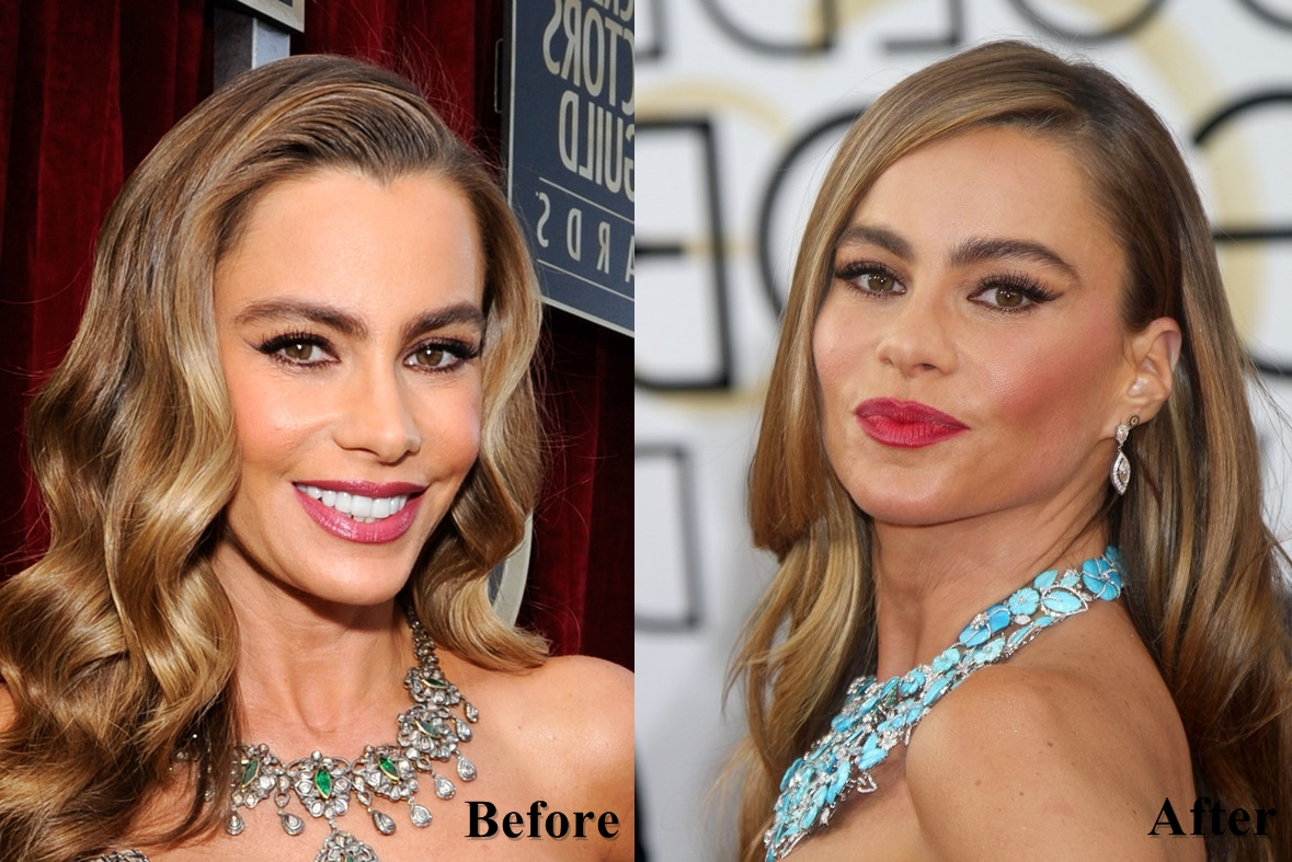 Sofia Vergara plastic surgery face before and after photos 4