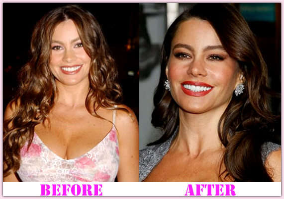 Sofia Vergara plastic surgery face before and after photos
