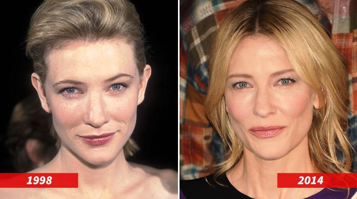 cate blanchett plastic surgery before and after 2018