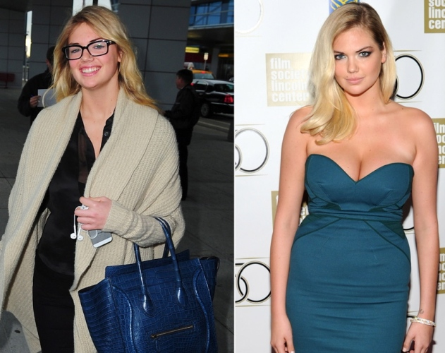 kate upton breast implants plastic surgery before and after photos1
