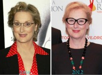 meryl streep plastic surgery before and after pictures
