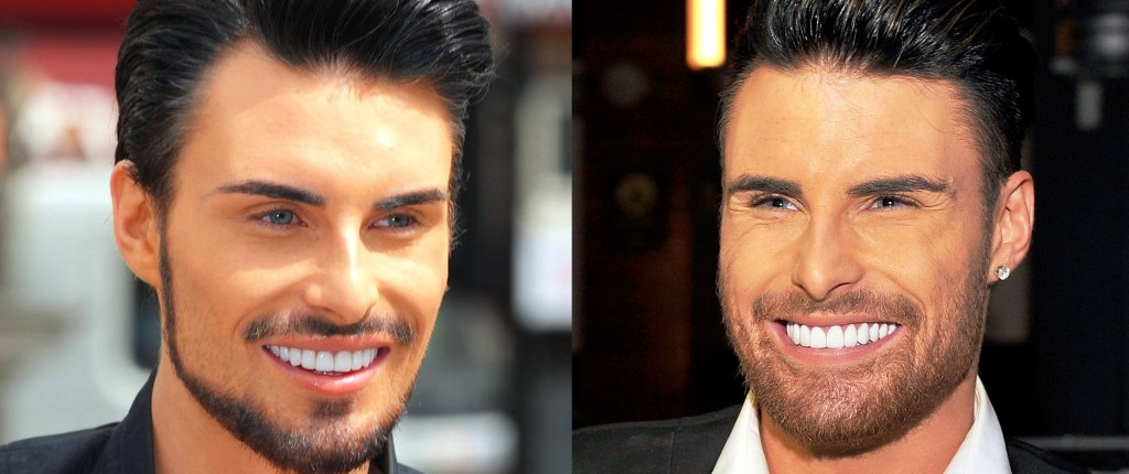 rylan clark new teeth before and after photos3