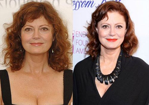 susan sarandon plastic surgery before and after pictures2