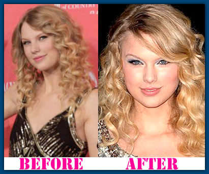 taylor swift nose job before and after pictures
