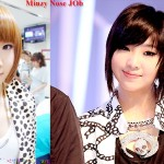 2NE1 Minzy Plastic Surgery Before And After Photos, Pictures