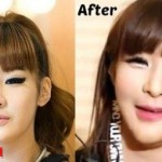 2ne1 Park BOM plastic surgery before and after photos, Pictures