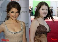 Anna Kendrick plastic Surgery before and After Photos 6