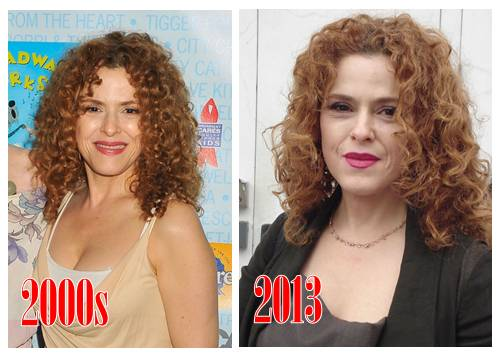 Bernadette Peters Plastic Surgery Before And After Photos face lift