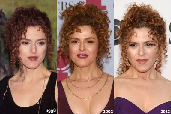 Bernadette Peters Plastic Surgery Before And After Photos