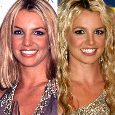 Britney Spears Plastic Surgery before and After Pictures 2