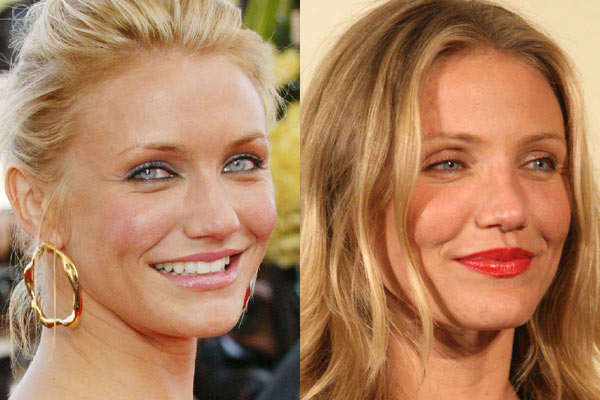 Cameron Diaz Nose Job Plastic Surgery before and After Pictures 2