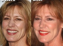 Christine Lahti plastic surgery facelift before and after photo