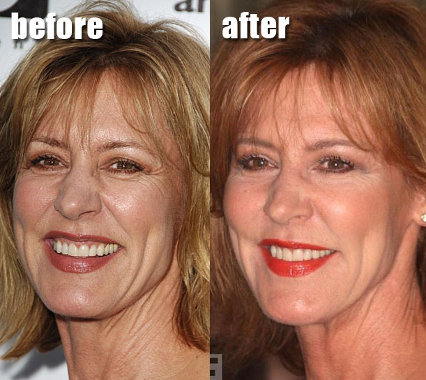 Christine Lahti Plastic Surgery Facelift Before And After ... Maggie Gyllenhaal Nose