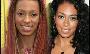 Ciara Nose Job Plastic Surgery Before and After Photos, Pictures