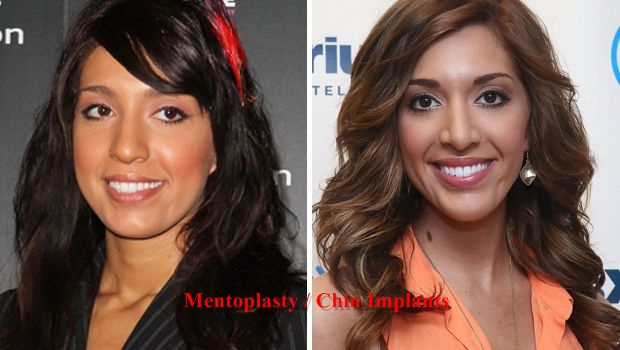 Farrah Abraham before and after plastic surgery (17