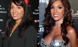 Farrah Abraham nose job, rhinoplasty before and after