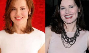 Geena Davis plastic surgery before and after photos face lift