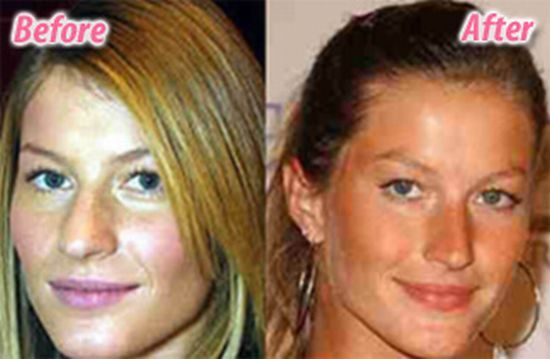 Gisele Bundchen Nose Job Plastic Surgery Before And After  1
