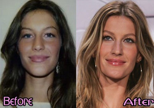 Gisele Bundchen Nose Job Plastic Surgery Before And After