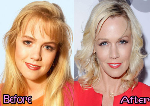 Jennie Garth Plastic Surgery Before And After Pictures  1