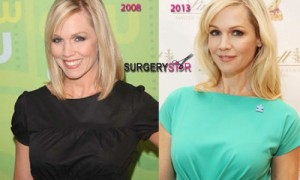 Jennie Garth Plastic Surgery Before And After Pictures 2