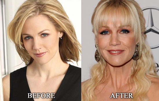 Jennie Garth Plastic Surgery Before and After Pictures