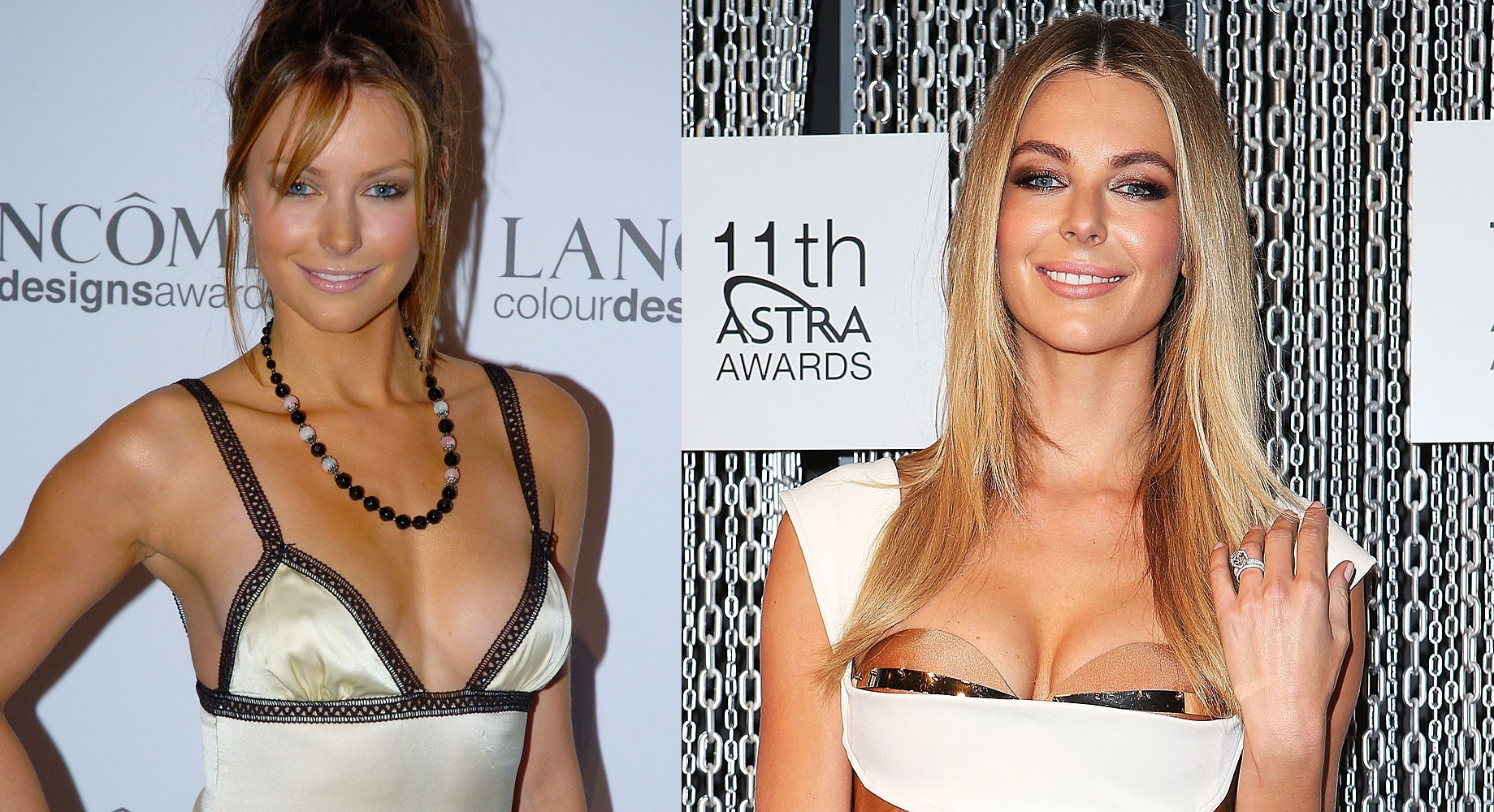 Jennifer Hawkins Plastic Surgery Before and After Pictures, Photos 3-horz