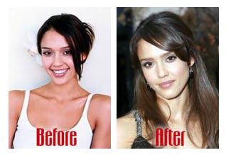 Jessica Alba Plastic Surgery Nose Job Before and After Photos1