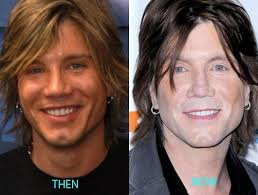 John Rzeznik plastic surgery before and after photos2