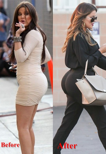 Khloe Kardashian plastic surgery Before and After Butt Implants, Botox1