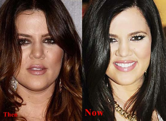 Khloe Kardashian plastic surgery Before and After Butt Implants, Botox2
