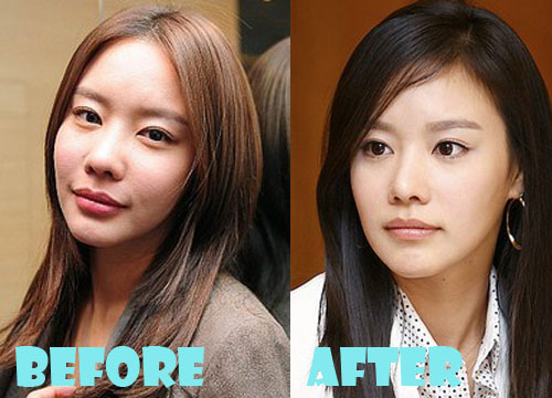 Kim Ah Joong plastic Surgery Before and After Pictures, Photos 1