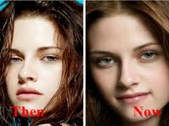 Kristen Stewart Nose Job, rhonoplasty Before And After Photos