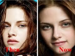 Kristen Stewart Nose Job Before And After Photos