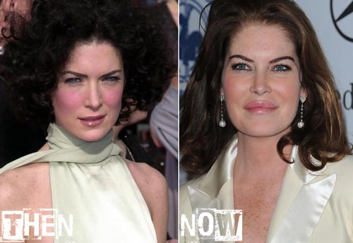 Lara Flynn Boyle plastic Surgery Before and After Photos 3
