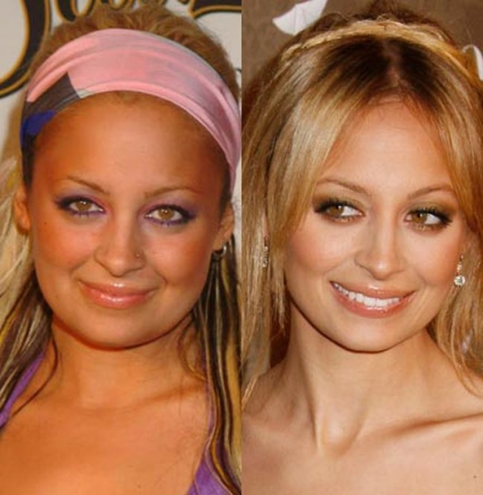 Nicole Richie Plastic Surgery Before and After Pictures 1