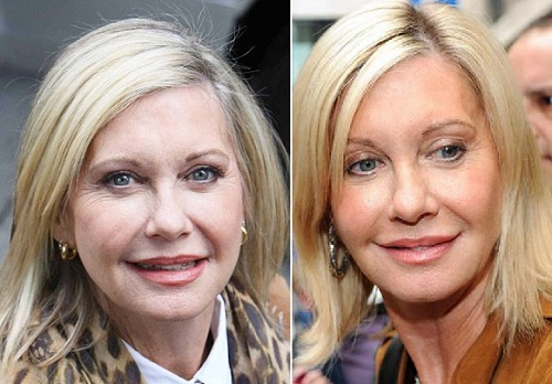 Olivia Newton John Plastic Surgery Before And After Pictures botox injections