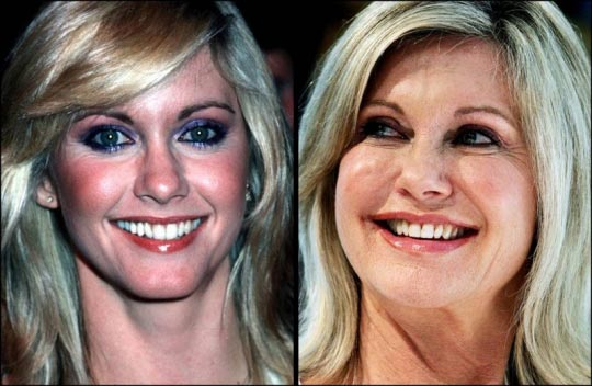 Olivia Newton john plastic surgery before and after pictures botox