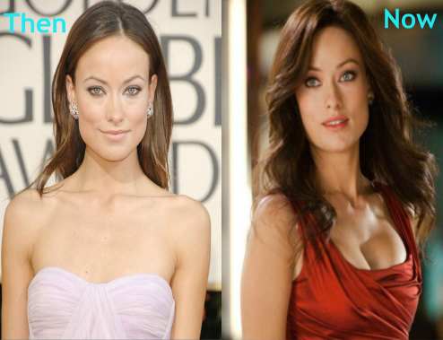Olivia Wilde Breast Implants Surgery Before and After Photos