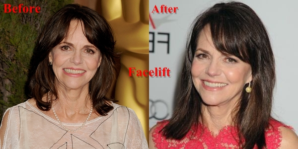 Sally Field Plastic Surgery Before And After Photos