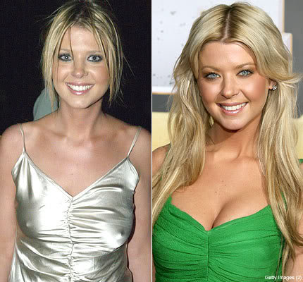 Tara Reid plastic Surgery Before and After Photos, Pictures