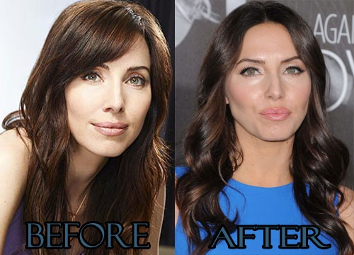 Whitney Cummings Plastic Surgery Nose Job Before And After