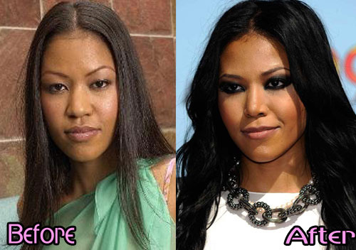 Amerie Nose Job Before After Photos
