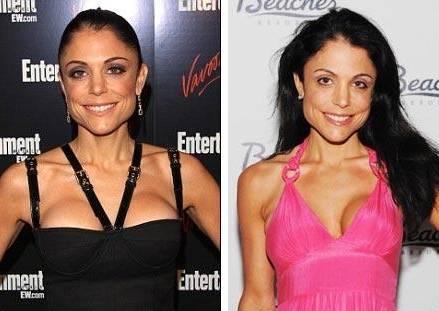 Bethenny Frankel plastic surgery face before and after photos, pics